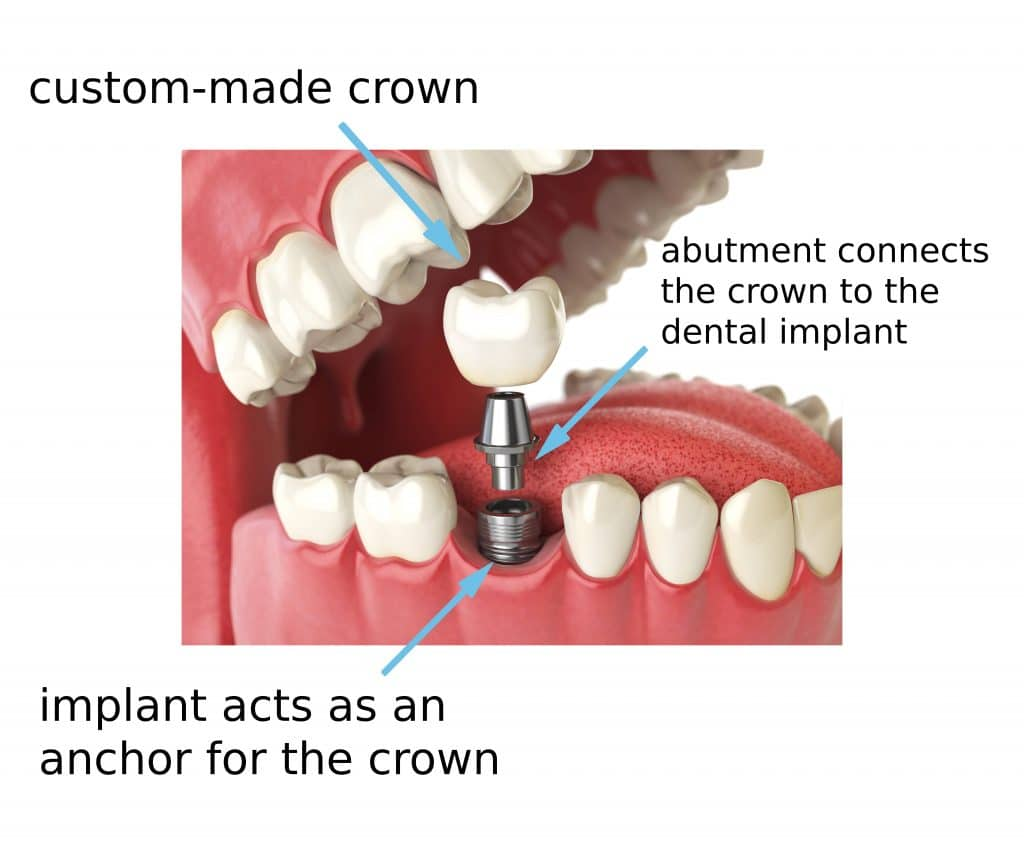 Dental Implant Process in Robina